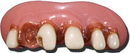Billy Bob Teeth 10023 Huntin' Cavity Teeth